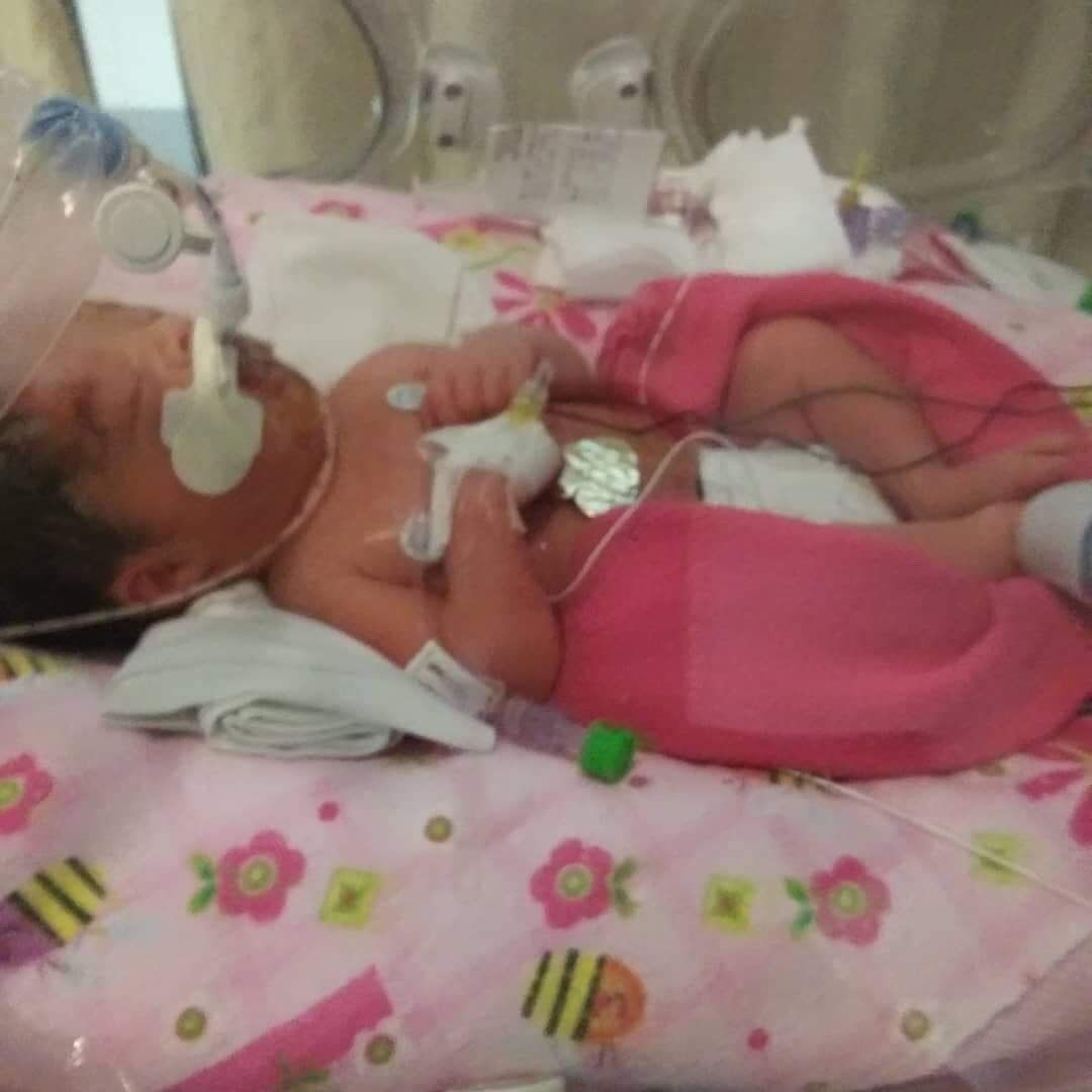 This premature baby is clinging to life at San Antonio Military Medical Center Hospital. Her mother was six months pregnant when she was murdered Tuesday night.{ } (Photo courtesy of Jessica Marroquin)