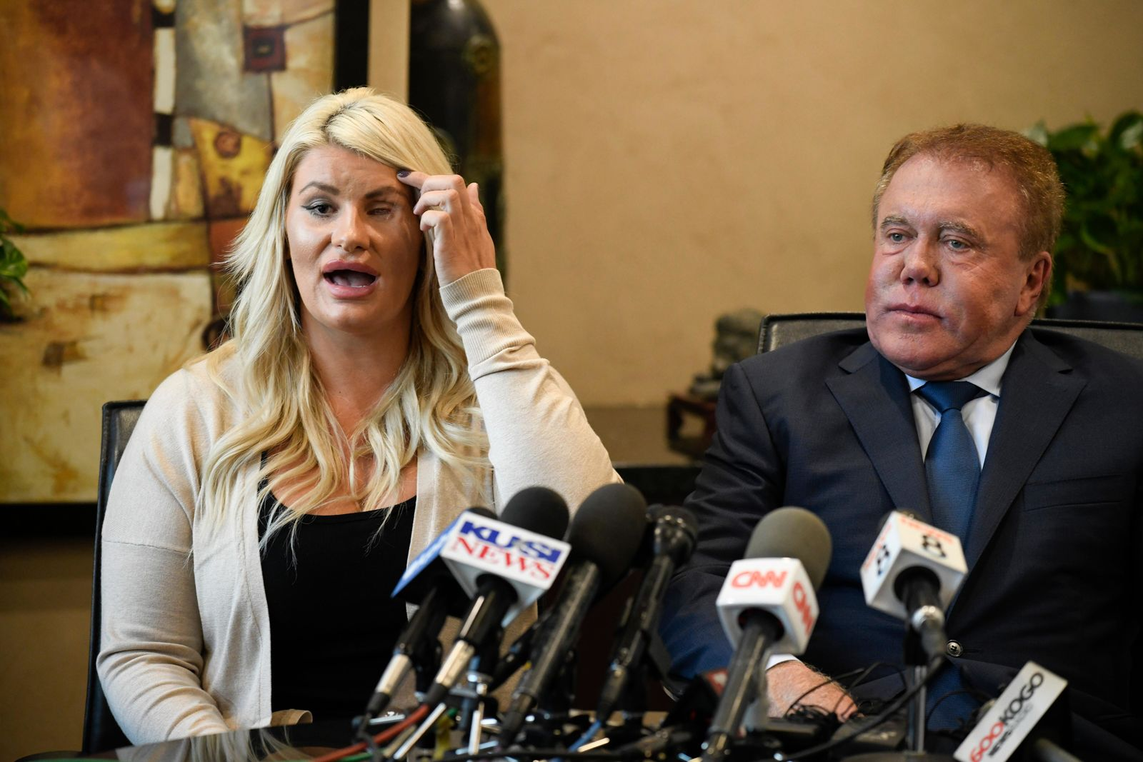 Chelsea Romo, left, pulls the her hair out of the way to show her left eye at a news conference as her attorney James Frantz looks on Thursday, Oct. 3, 2019, in San Diego. (AP Photo/Denis Poroy)