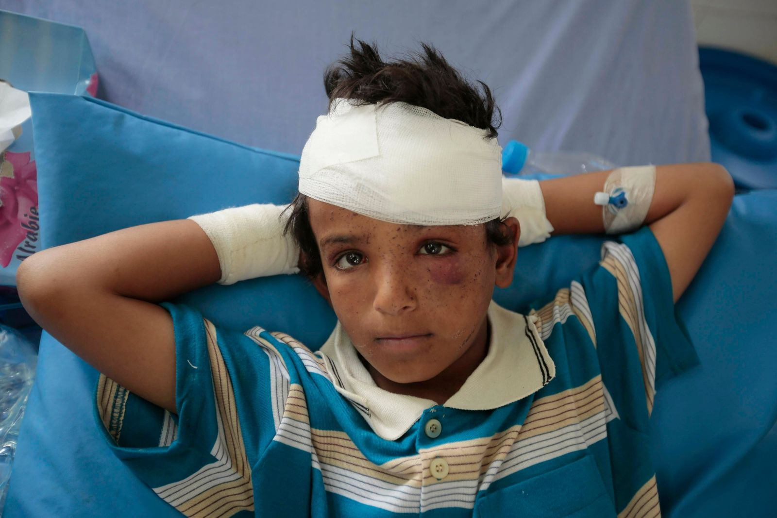 FILE - In this Aug. 12, 2018, file, photo, A child injured in a deadly Saudi-led coalition airstrike on Thursday rests in a hospital in Saada, Yemen.{ } (AP Photo/Hani Mohammed, File)