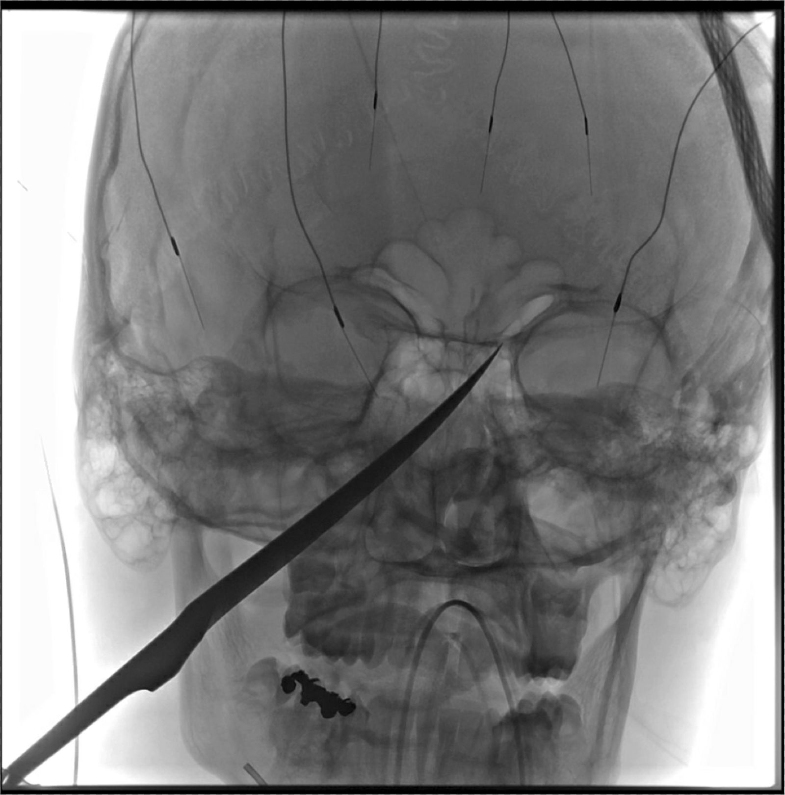 "This X-Ray imagery provided by The University of Kansas Health System shows the skull of Eli Gregg with a knife embedded. The 15-year-old Kansas boy is recovering days after doctors removed a 10"" knife that impaled his face when he fell while playing. Gregg's harrowing experience began late Thursday, June 13, 2019, when he was playing outside his home in Redfield, about 11 miles from Fort Scott in southeast Kansas. The knife was embedded into his skull, extending to the underside of the brain. The tip of it had indented the carotid artery, the major artery which supplies blood to the brain. Surgeons at The University of Kansas Health System removed it Friday morning. Eli is expected to be able to go home Monday and should recover fully. (The University of Kansas Health System via AP)"