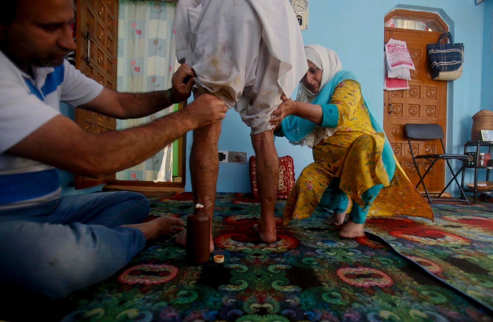 Family members of Kashmiri youth Gulam Rasool Bhat apply medicine on pellet wounds on his body inside his home in Srinagar, Indian controlled Kashmir, Tuesday, Aug. 20, 2019. The president of Pakistani-administered Kashmir welcomed efforts by U.S. President Donald Trump to lower tensions between Pakistan and India over the disputed Himalayan region on Tuesday and warned of a deepening humanitarian crisis and food shortages in the Indian-held portion. (AP Photo/Mukhtar Khan)