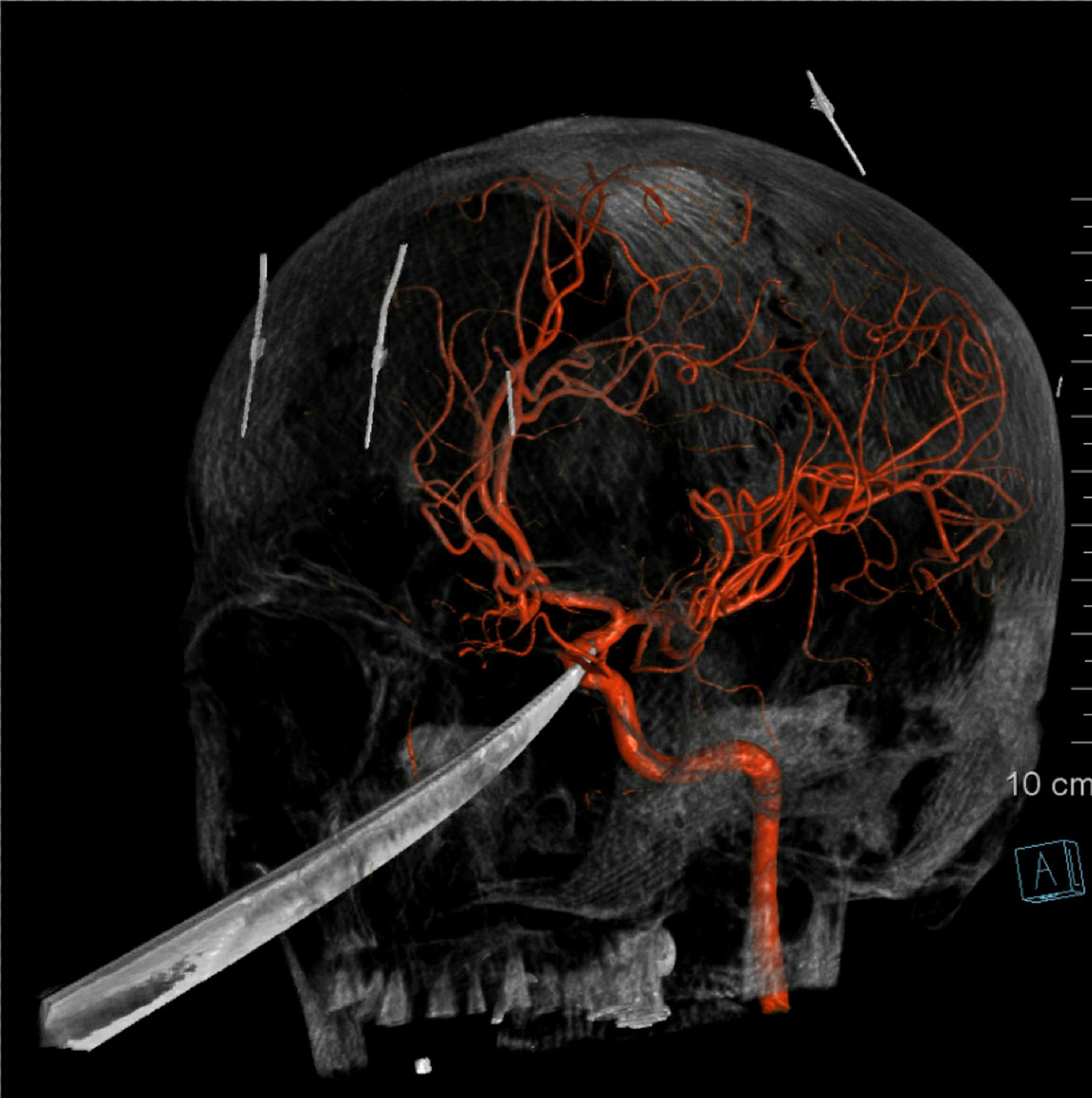 "This 3D computer graphic model made from X-Ray imagery by The University of Kansas Health System shows how a tip of the knife stopped right on and was pressed against the carotid artery as the X-Ray image shows the skull of Eli Gregg. The 15-year-old Kansas boy is recovering days after doctors removed a 10"" knife that impaled his face when he fell while playing. Gregg's harrowing experience began late Thursday, June 13, 2019, when he was playing outside his home in Redfield, about 11 miles from Fort Scott in southeast Kansas. The knife was embedded into his skull, extending to the underside of the brain. The tip of it had indented the carotid artery, the major artery which supplies blood to the brain. Surgeons at The University of Kansas Health System removed it Friday morning. Eli is expected to be able to go home Monday and should recover fully. (The University of Kansas Health System via AP)"