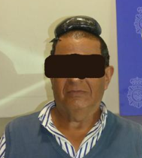 Man arrested at airport after half-kilo of cocaine found hidden under his toupée. (Photo: Spanish National Police)