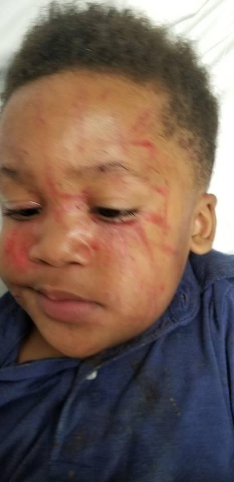 (image: WPMI) Family says son was attacked at Pascagoula daycare