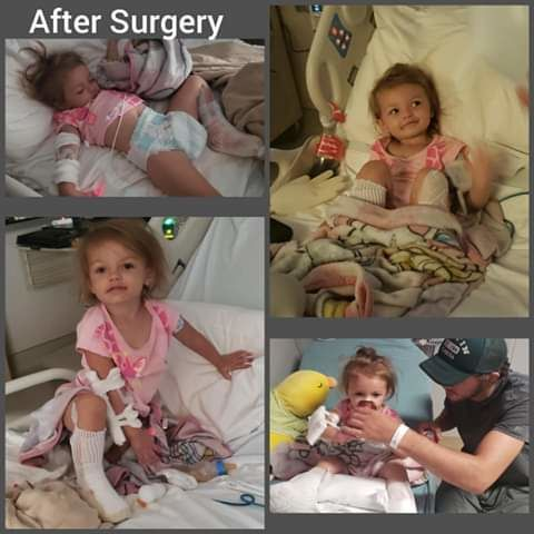 Kaylee is now home from a burn center in Georgia, but more surgery awaits this 2 year old. (Photo used with permission by the child's mother, Brittany Smith)<p></p>