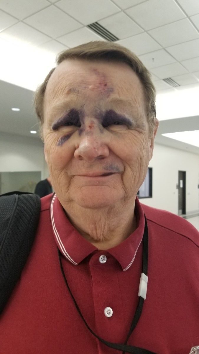 <p>The first injury has been reported on Utah's new driverless shuttle. Gene Petrie, 76, was thrown from his seat Tuesday when the autonomous shuttle came to a sudden stop. (Photo courtesy Petrie family)</p>